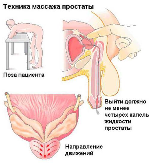 ¿Qué es un masaje de próstata?