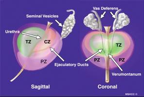 ¿Cuánto tiempo puede durar la prostatitis?