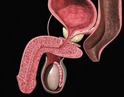 es la prostatitis bacteriana tratable crónica
